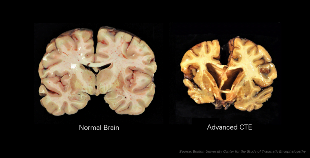 chronic_traumatic_encephalopathy