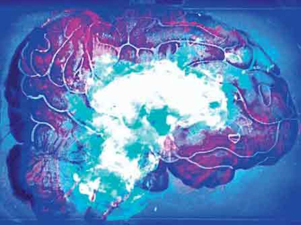 biohacks_bacteria-brain