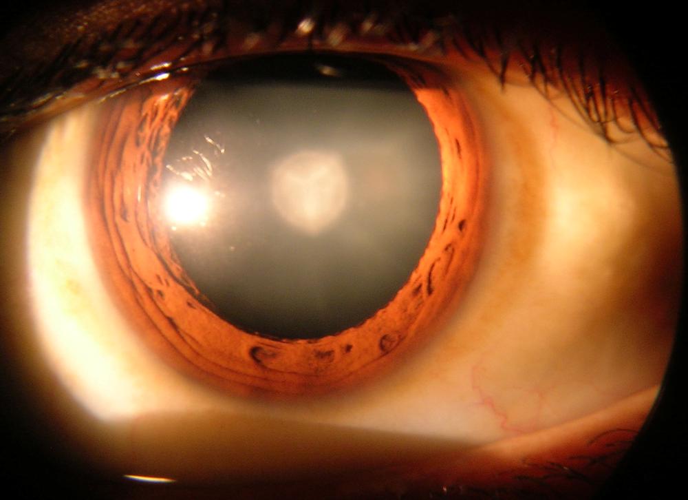 cataract_in_human_eye