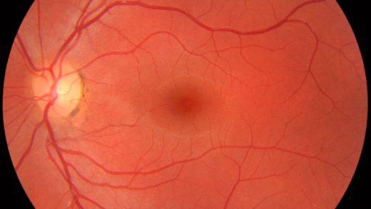 Retina Görseli