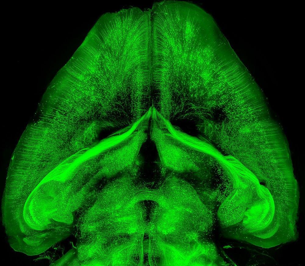 Organları ve küçük hayvan vücutlarını şeffaf hale getiren yeni teknikle görüntülenmiş bütün bir fare beyni