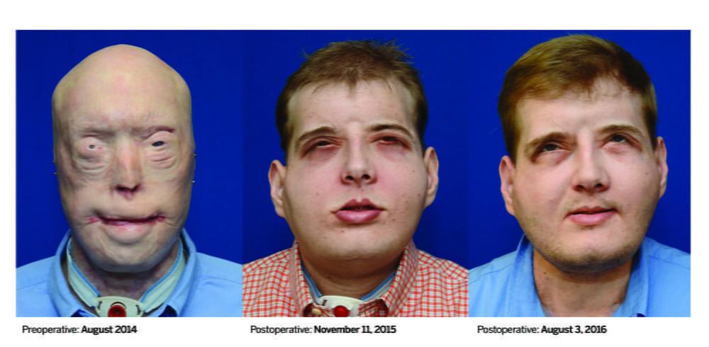 Yüz nakli süreci Günümüze kadar gerçekleştirilmiş en kapsamlı yüz nakli ameliyatını geçiren Patrick Hardison'ın nakilden önceki, operasyondan hemen sonraki ve 1 yıl sonraki görüntüsü