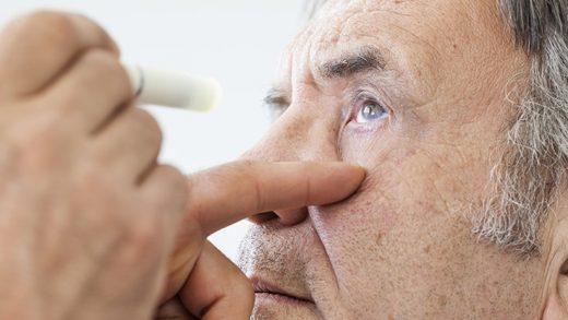 Bilim İnsanları, Göz Hastalıkları ve Alzheimer Arasında Önemli Bir Bağlantı Keşfetti