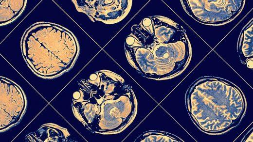 Yeni Çalışmaya Göre Alzheimer, 6 Farklı Grup Olarak Ele Alınmalı
