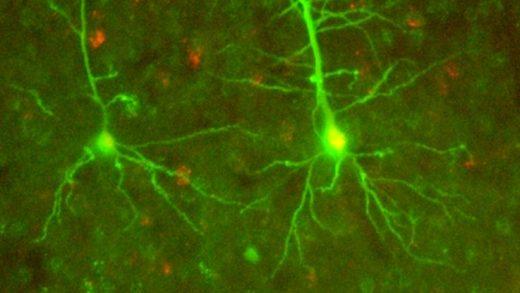 Sinirbilimciler, Tamamen Yeni Olan Sinirsel Bir İletişim Şekli Buldu