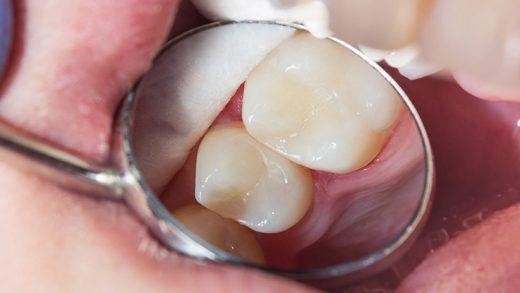 Bağışıklık Sistemimiz, Diş Çürümesine Katkıda Bulunuyor Olabilir