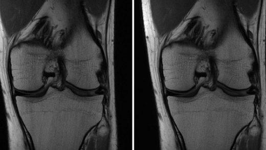 Facebook'un, Yapay Zekayla MRI Taramalarını Hızlandırma Çalışmalarına Özel Bir Bakış