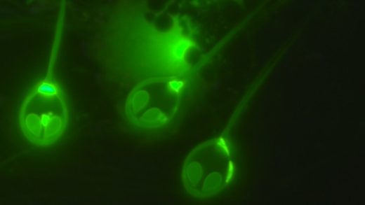 Yaşamak İçin Oksijene İhtiyaç Duymayan İlk Hayvan Keşfedildi