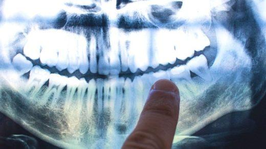 Dişlerimizdeki İlginç 'Ağaç Halkaları', Yaşamımızdaki Olayları Gösteriyor Olabilir